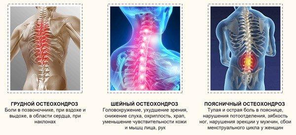 Остеохондроз подразделяется на три вида: шейный, поясничный, грудной