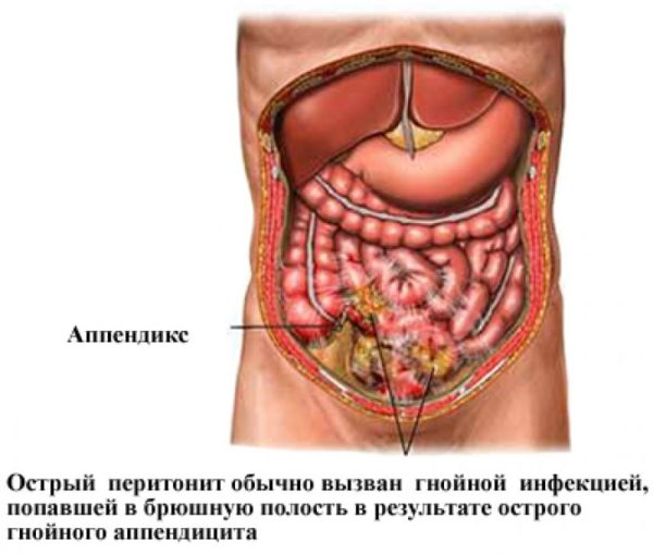 Острый перитонит