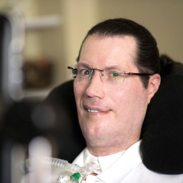 Пациент с диагнозом БАС