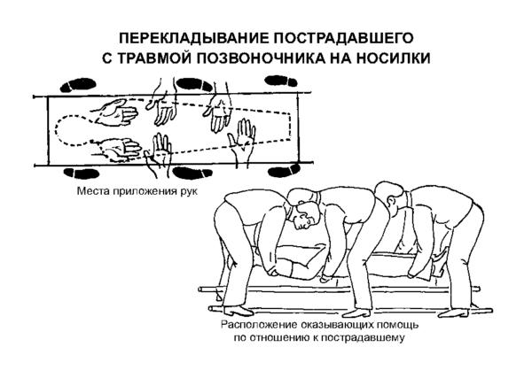 Перекладывание пострадавшего с травмой позвоночника на носилки