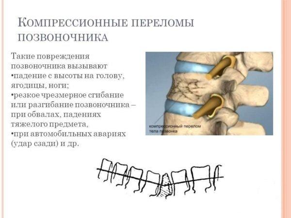 Переломы компрессионного типа