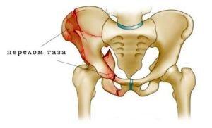 Травматические повреждения участков малого таза или расположенных рядом мышц.