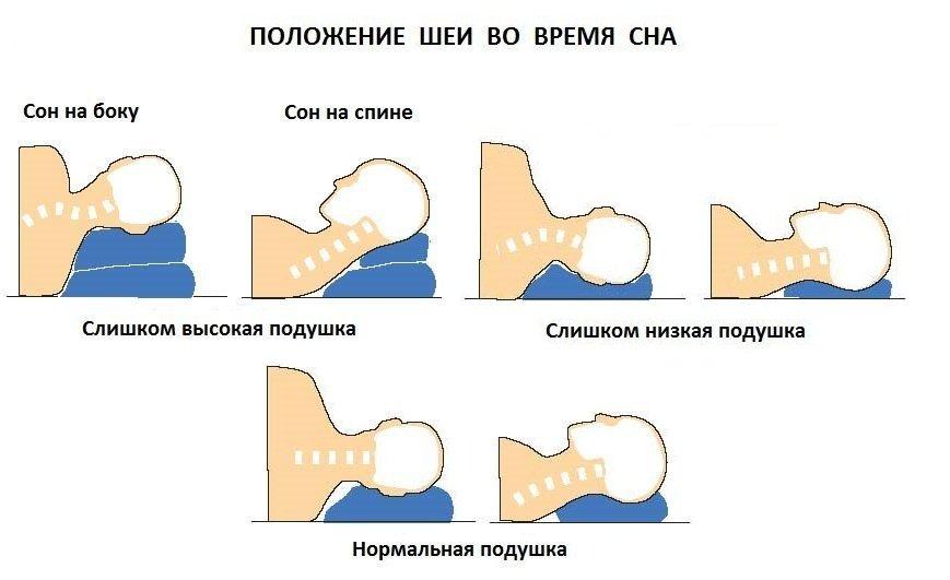 Шейный остеохондроз высокая или низкая подушка фото