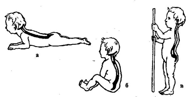 Появление изгибов позвоночника у детей в связи с держанием головы (а), при сидении (б) и стоянии (в)