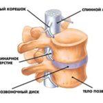Сросшиеся позвонки грудного отдела позвоночника лечение
