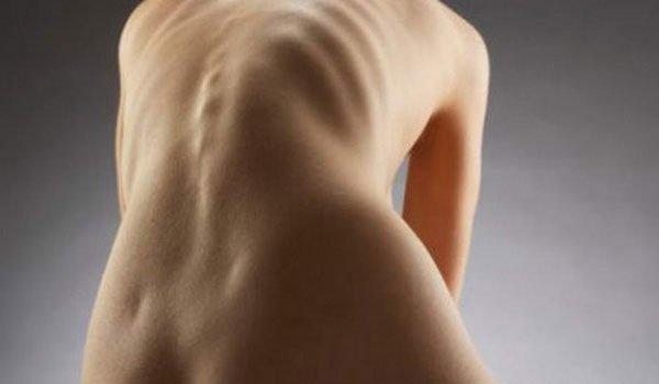При сколиозе может деформироваться грудная клетка