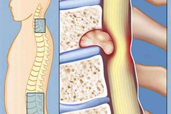 При заболевании могут возникать корешковые боли