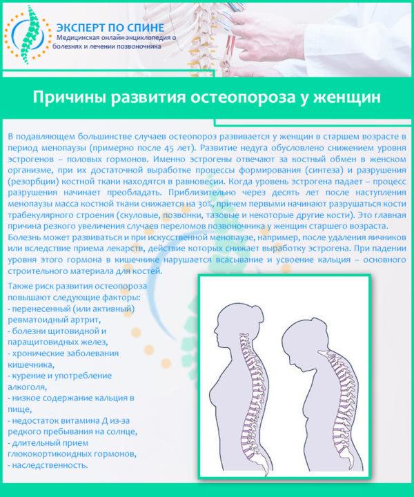 Причины развития остеопороза у женщин