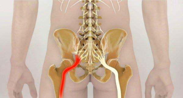 Признаки защемления седалищного нерва