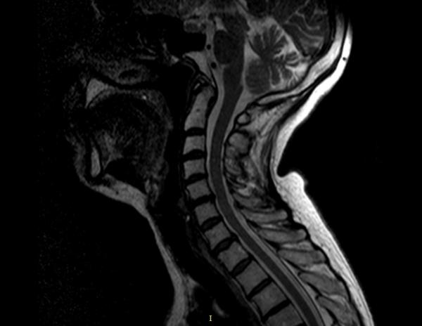 Протрузию диска детально можно рассмотреть на МРТ позвоночника, а также на снимке, полученном при компьютерном сканировании