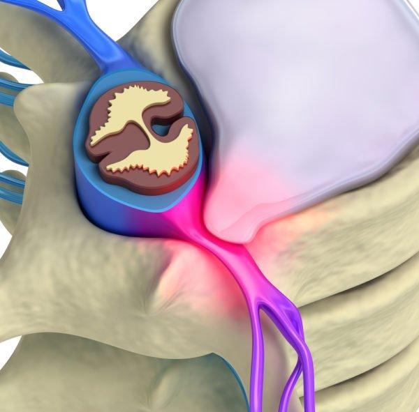 Радикулопатия возникает при ущемлении корешка спинного мозга
