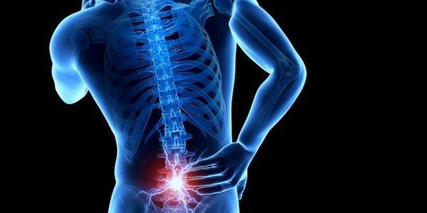 Рентгенография помогает выявить различные патологии позвоночника