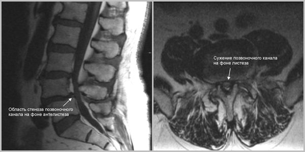 Рентгенограмма - стеноз позвоночного канала