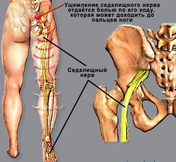 При люмбоишиалгии боль может доходить до пальцев ног