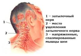 Сдавливание затылочного нерва