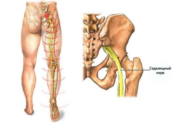 Ишиалгия - воспаление седалищного нерва
