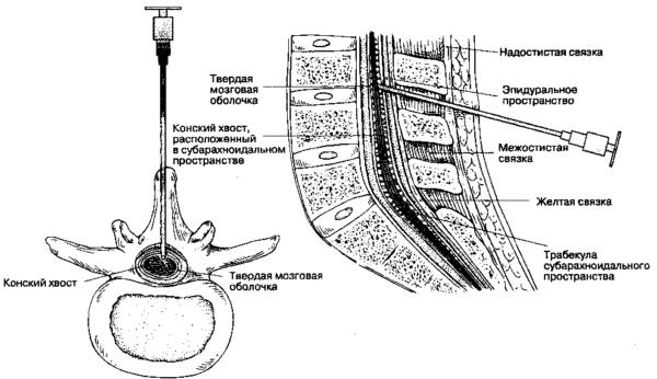 Схема расположения эпидурального пространства