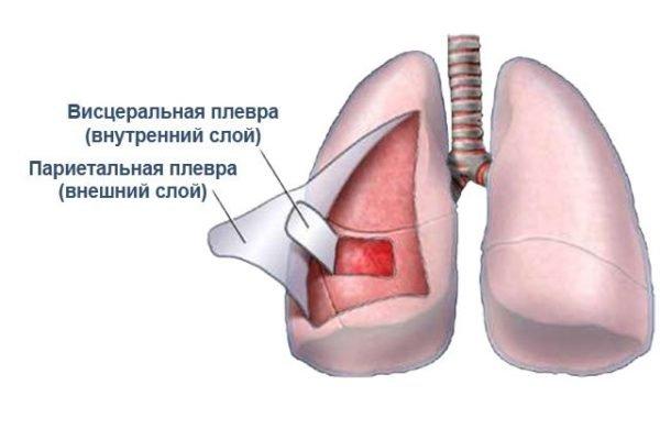 Такие плевральные мешки защищают легкие от воспалений и других патологических факторов. Если они воспаляются сами, такое заболевание называется плеврит