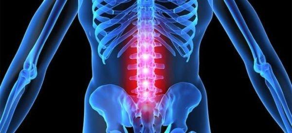 Симптомы хондроза поясничного отдела позвоночника
