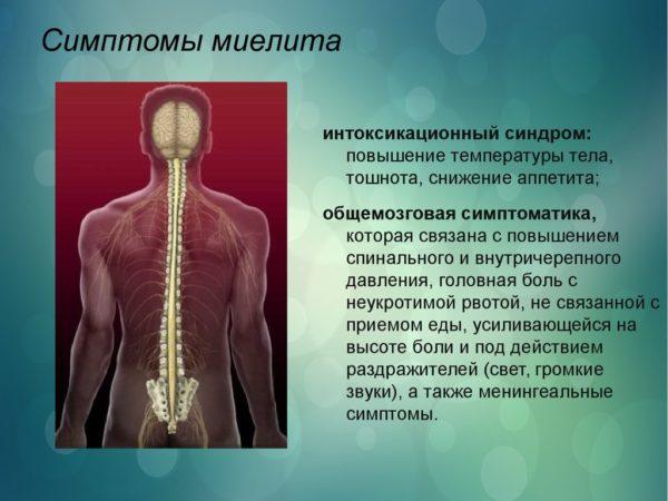Симптомы миелита