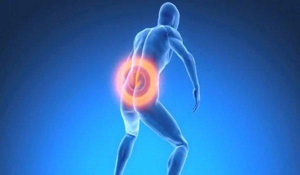 Симптомы развития спондилолистеза