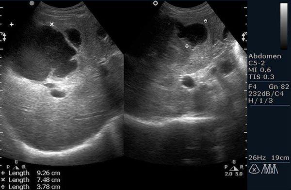 Снимок диагностического исследования при помощи ультразвука