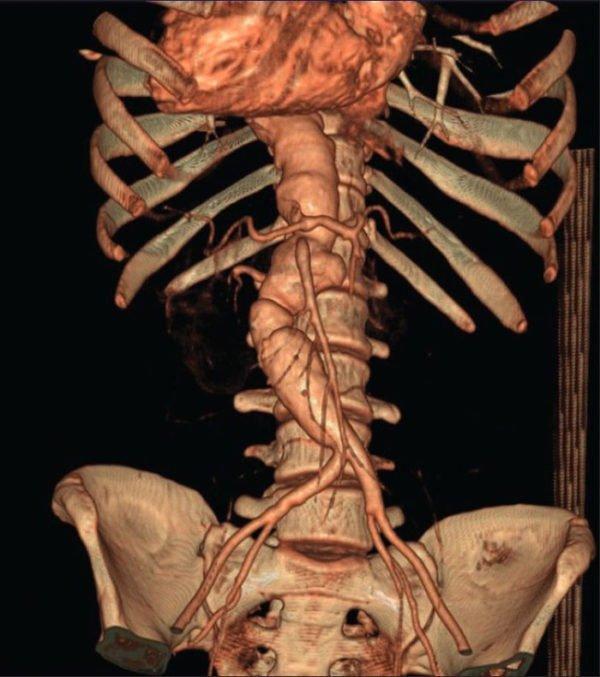 Снимок позвоночника на томографе