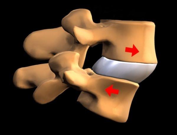 Спондилолистез пояснично-крестцового отдела позвоночника