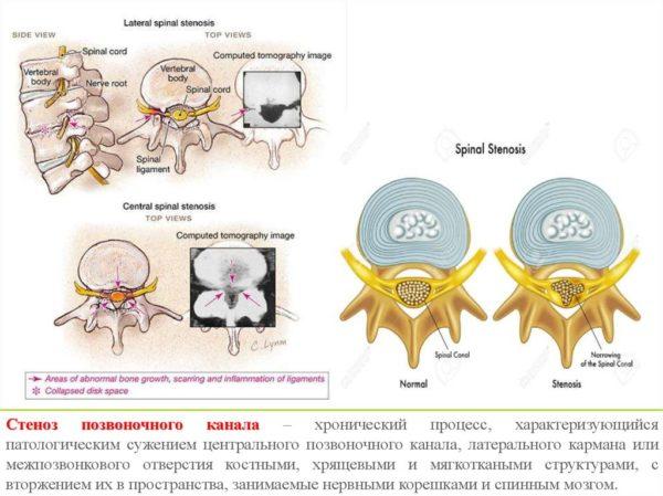 Стеноз позвоночного канала – хронический процесс, характеризующийся патологическим сужением центрального позвоночного канала