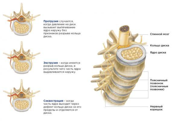 Три типа межпозвоночной грыжи