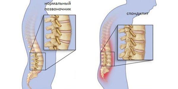 При спондилите костная ткань соседних позвонков срастается