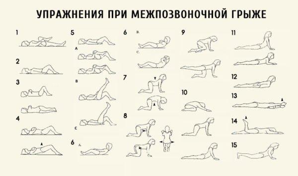 Упражнения при межпозвонковой грыже