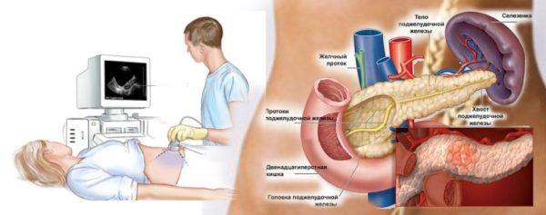 УЗИ органов брюшной полости