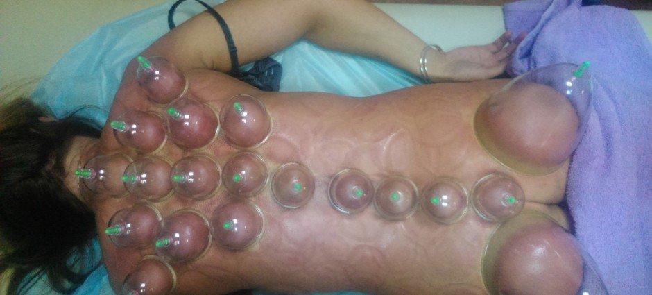 Вакуумные силиконовые банки при остеохондрозе