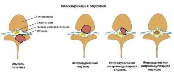 Виды опухолей позвоночника