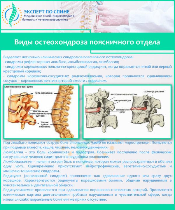 Виды остеохондроза поясничного отдела