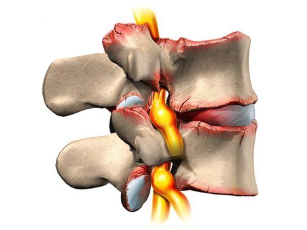 Возможно, что опоясывающая боль в области поясницы появилась ввиду пояснично-крестцового остеохондроза
