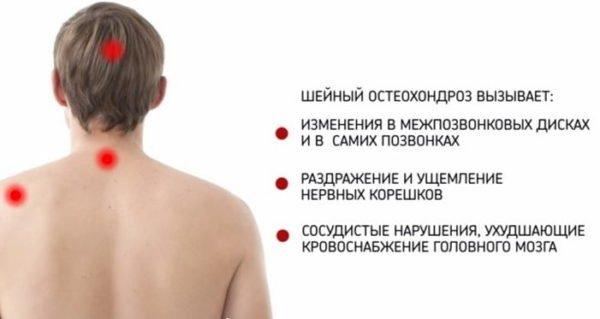 Возможные последствия шейного остеохондроза