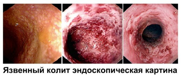 Язвенный колит - фото с эндоскопа