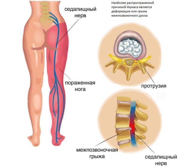 Защемление седалищного нерва - нередкое явление для современного человека
