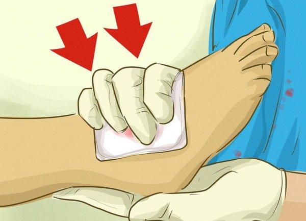 Займитесь остановкой кровотечения
