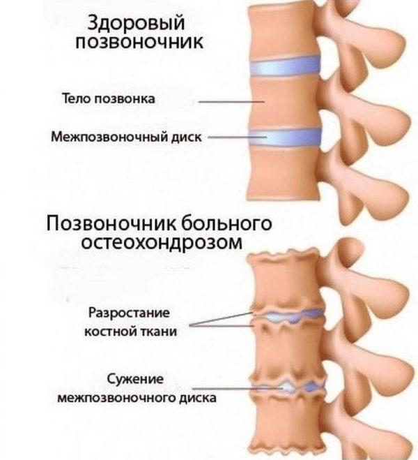 Здоровый позвоночник и позвоночник больного остеохондрозом