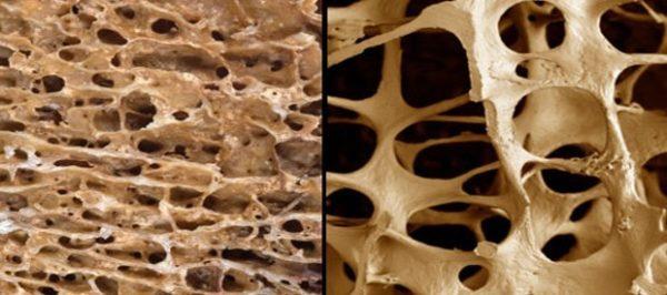 Повышенный риск развития остеопороза относится к основным показаниям для денситометрии
