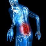 Как и чем лечить грыжу шейного отдела позвоночника