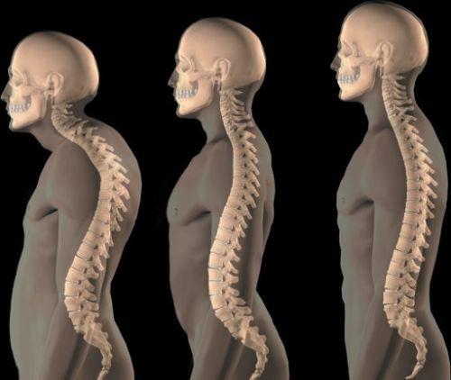Гимнастика при кифосколиозе грудного отдела