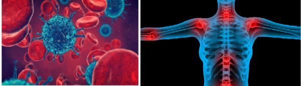 Одной из причин спондилоартроза являются инфекции, вызывающие воспаления в суставах