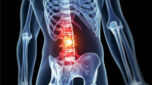 Боль в спине локализуется в зависимости от месторасположения пораженных позвонков
