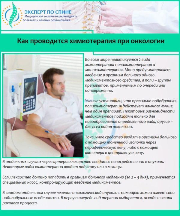 Как проводится химиотерапия при онкологии
