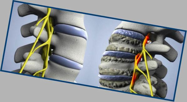 Чем более запущенная стадия заболевания, тем сильнее повреждаются позвонки и межпозвоночные диски
