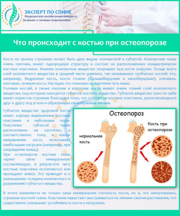 Что происходит с костью при остеопорозе
